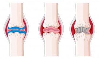 Ревматоидный артрит под контролем! Как затормозить болезнь?