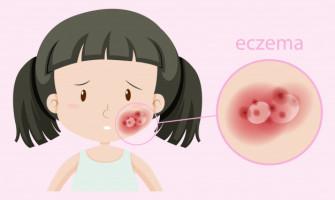 Экзема – самое распространенное поражение эпидермиса и дермы